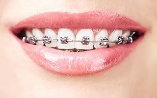 http://www.ambulatorioodontoiatricobiffi.it/wp-content/uploads/2015/11/shutterstock_124314160-320x200-320x200.jpg